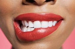 Mundschleimhaut - Nicht nur die Zähne, sondern auch die Mundhöhle bedarf besonderer Pflege, um Erkrankungen frühzeitig zu erkennen und zu behandeln.