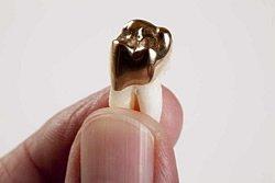 Teilkrone aus Gold