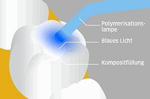 Polimerisation mit Lampe