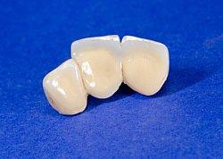 Provisorium für drei Zähne vor Einsatz des endgültigen Zahnersatzes