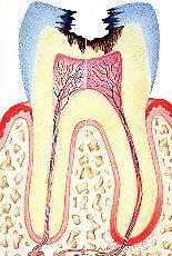 Eine Pulpitis kann entstehen, wenn sich eine besonders tiefe Karies im Zahn entwickelt hat. In den meisten Fällen ist dies der Grund