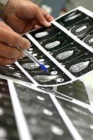 Auch in der Zahnarztpraxis ist die Tomographie zum beliebten Diagnoseverfahren geworden.