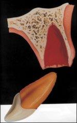 Totalluxation Zahnunfall