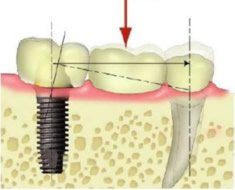 Verbundbrücke Zahn-Implantat