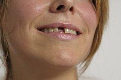 Zahn abgebrochen