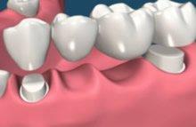 Zahnbrücke als Ersatz von vier Zähnen