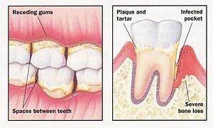 Zahnfleischrückgang und Parodontose