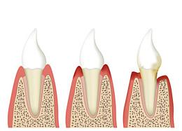 Das Zahnfleisch bildet sich zurück