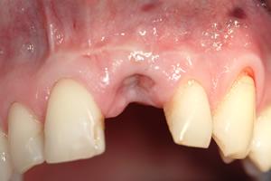 Zahnlücke im Frontzahnbereich