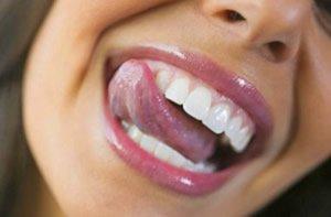 Überzeigendes Ergebnis nach Zahnreinigung