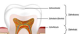 Der Zahnschmelz ist eine stark mineralische Substanz und stellt die äußerste Schicht der Zahnkrone dar.