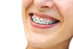 Eine Zahnspange agiert passiv, um die Zähne in die richtige Position zu bewegen. Entsprechend ist er schonender in seiner Wirkung.