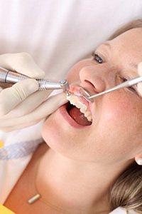 Zahnstein vom Zahnarzt professionell und schmerzfrei entfernen lassen