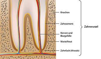 Zahnwurzel Entzündet