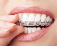 Eine Parodontitis wird nicht durch das Tragen einer unsichtbaren Zahnspange gefördert oder verschlimmert.