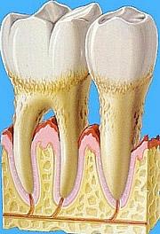 Zahnfleischrückgang durch Parodontose