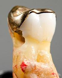 Bei großflächigen Füllungen können Inlays, z.B. aus Gold oder Keramik, die ideale Lösung sein.