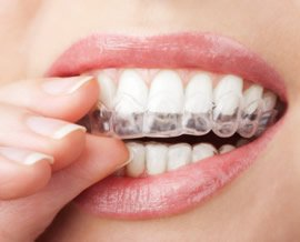 Unsichtbare Zahnspangen ermöglichen die Korrektur der Zahnfehlstellung auf diskrete und optisch ansprechende Weise.