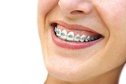 Feste Zahnspangen kommen vor allem beim Kindern und Jugendlichen zum Einsatz