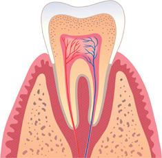 Entzündung des Zahns in schematischer Darstellung