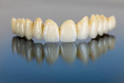 Die Vorteile von Keramik Zahnersatz liegen auf der Hand: Sie wirken wie echte Zähne und sind kaum allergen.