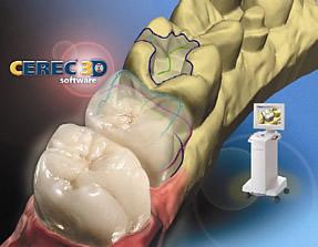 Cerec - 3-D Keramik