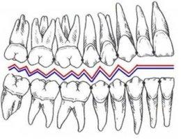 Im Erwachsenengebiss sind maximal 32 Zähne vorhanden, die wie Glieder einer Kette funktional ineinander greifen. Die s.g. Okklusion gewährleistet effektives Kauen.