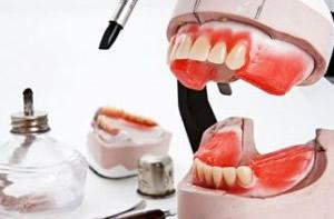Anfertigung einer Zahnprothese im Dentallabor