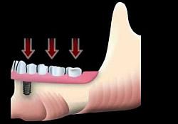Wirkende Kaukräfte auf das Implantat