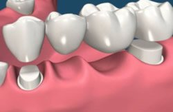 Zahnbrücke vor und nach dem Abnehmen