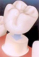 Künstliche Molar-Krone