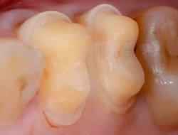 Präparation der Zähne für eine Krone