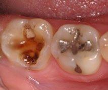 Überkronungsbedürftiger Zahn