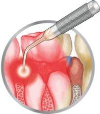 Zahnfleischbehandlung mit Kürette