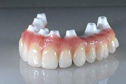 Wer Zahnimplantate benötigt, greift am besten auf Zirkon zurück, da es sehr reizarm ist.