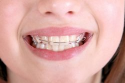 Zahnfehlstellungen können Auswirkungen auf Gesicht, Nacken und die Wirbelsäule haben. Der Bionator ist eine sanft wirkende Alternative zur Zahnspange und korrigiert diese Fehlstellungen.