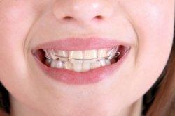 Zahnsanierung Erfahrungen