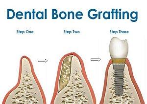 Im Vorfeld der Implantation kann, muss aber nicht, ein Knochenaufbau notwendig sein. Das ist der Fall, wenn der Knochen stark zurück gegangen ist, sodass kein Implantat halten würde.