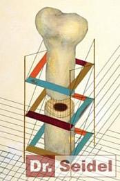 Um den Knochen dazu anzuregen, selbst nachzuwachsen, wird beim Zahnarzt eine Distraktion eingesetzt.