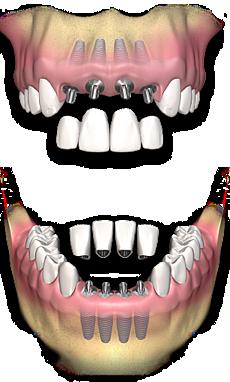 Implantate ersetzen die natürlichen Zahnwurzeln adäquat - Sie werden kaum spüren, dass es nicht die echten Zähne sind.