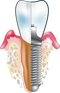 Durch Implantationen kann Ihnen Ihr Zahnarzt schöne Zähne schenken, die zudem echten Zähnen in ihrer Funktion nicht nachstehen.