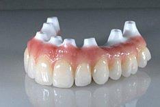 Zahnimplantate dienen häufig auch als Halterungen für ganze Zahnersatzbrücken.