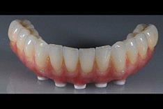 Zahnimplantate werden nicht nur als Einzelimplantate, sondern auch als Implantatprothese angeboten, wenn eine Reihe von Zähnen fehlen.