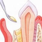 Ersatzmaterial wird entweder aus dem Knochen gewonnen oder künstlich hergestellt.
