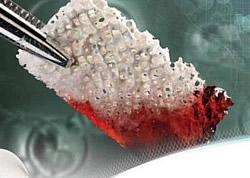 Wenn das Knochenangebot nicht ausreicht zur Versorgung mit Zahnimplantaten, füllt Knochenersatzmaterial diesen Mangel wieder auf.