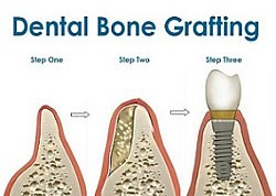 Knochenaufbau (Augmentation) beim Zahnarzt