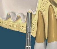 Der interne Knochenaufbau kommt bei nur gerninger Anhebung des Kieferhöhlenbodens zum Einsatz.