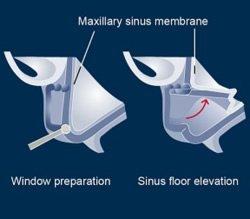 Der Sinuslift kann bei der Anpassung des Kiefers genutzt werden, um Implantate richtig eintzusetzen.