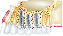 Im zweizeitigen Verfahren werden erst Monate danach die Zahnimplantate eingebracht.