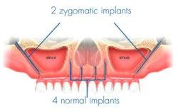 Spezielle KIPP-Implantate vermieden werden.